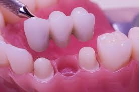 Implantate02
