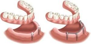 Implantate04