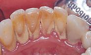 DentalHyg1